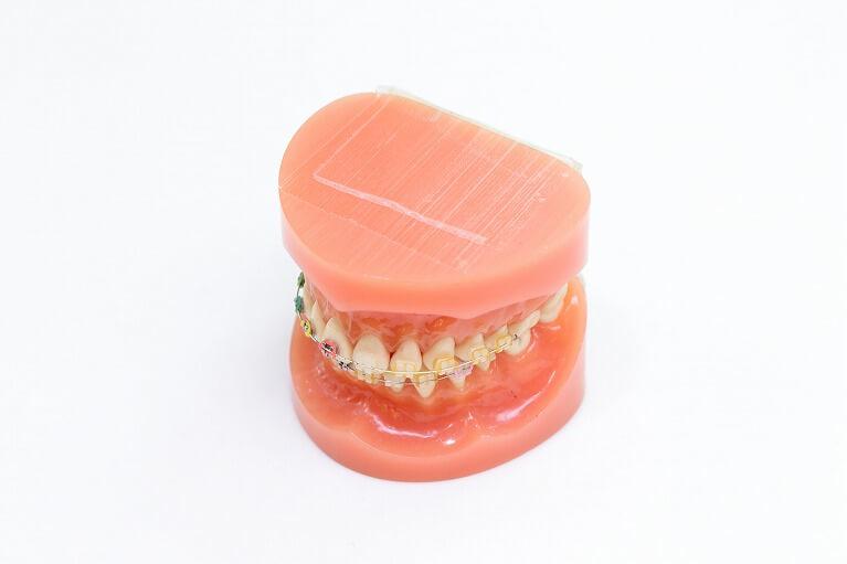 永久歯列期