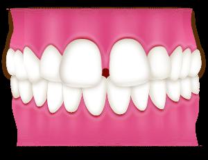 空隙歯列(すきっ歯)